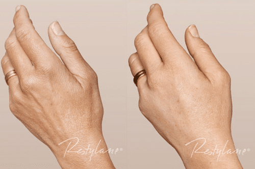 Restylane skinbooster 1