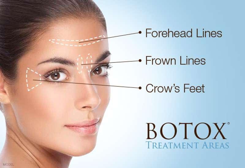 var kan botox användas